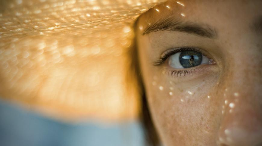 Macchie solari e iperpigmentazione